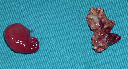 NASAL SEPTAL PAPILLOMA CO-EXISTING WITH A RHINOLITH: CASE